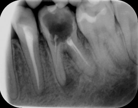 RTG zęba