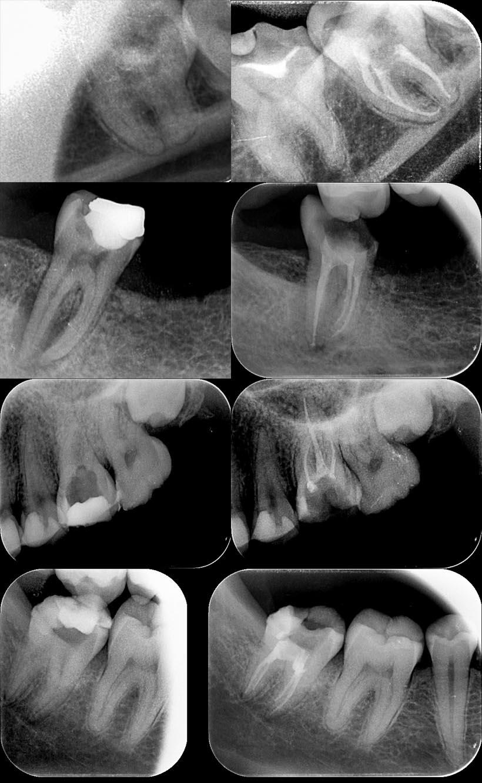 zdjęcia TRG zębów